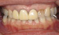 赤阪見附 保険の白い歯