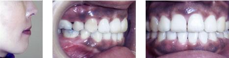 上顎前突の治療